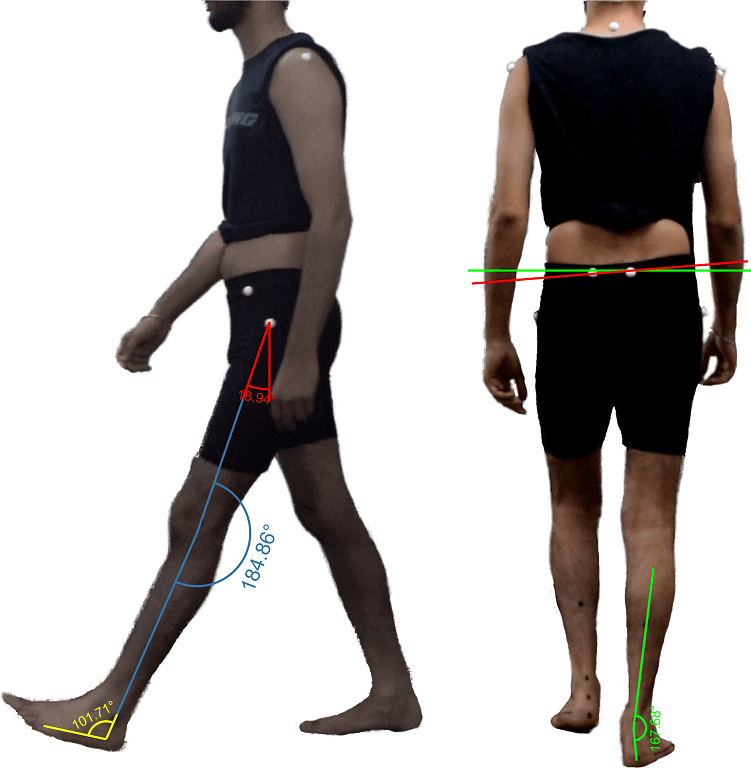 Gait Analysis Cover