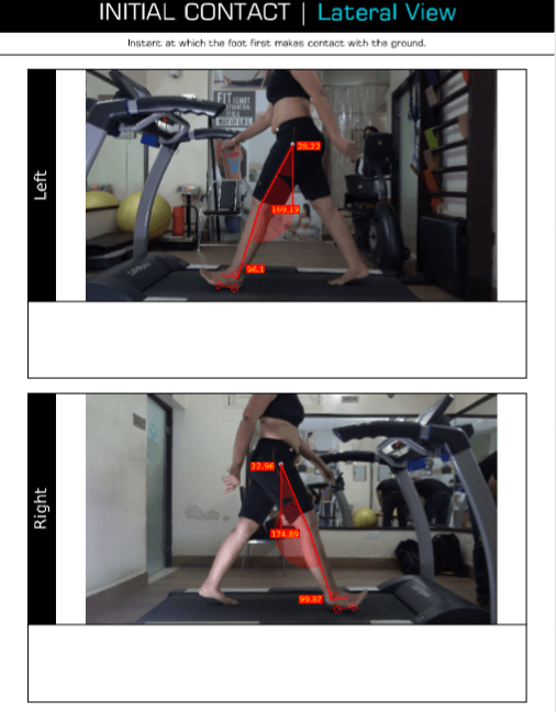 Gait Analysis images data